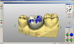 Digital Scan 3D