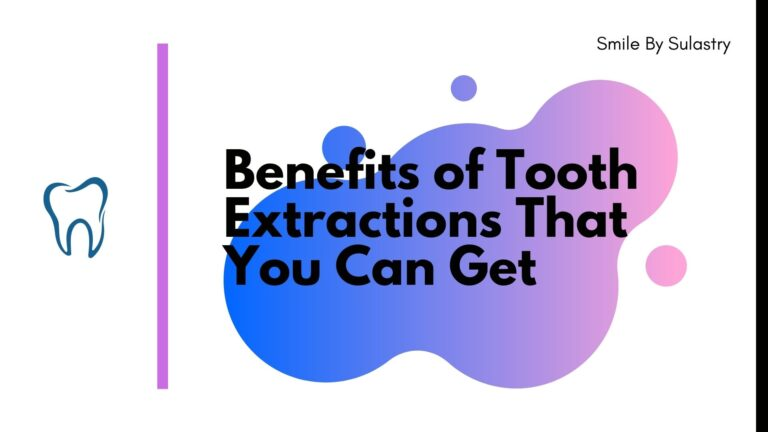 Benefits of Tooth Extractions