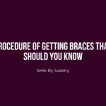 Procedure of Getting Braces That Should You Know