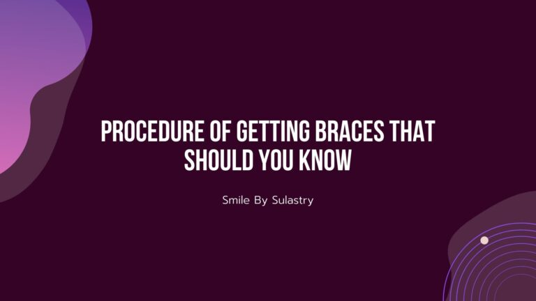 Procedure of Getting Braces