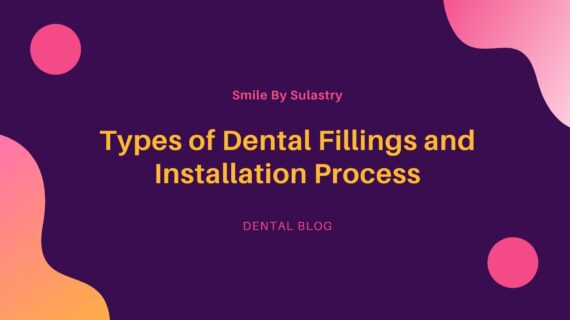 Types of Dental Fillings and Installation Process