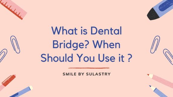 What is Dental Bridge? When Should You Use it ?