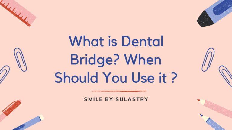 What is Dental Bridge