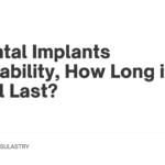 Dental Implants Durability, How Long it Will Last?