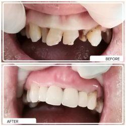 Service Dental Cosmetic Bali